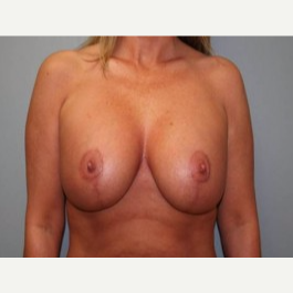 35-44 year old woman treated with Breast Lift after 3339123
