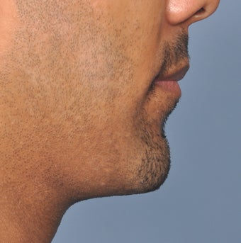 38 Year Old Male Treated For A Small Chin after 923477