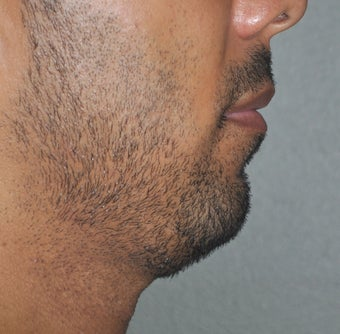 38 Year Old Male Treated For A Small Chin before 923477