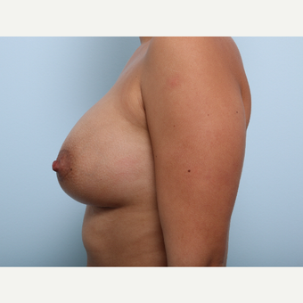 Breast Augmentation after 3345927