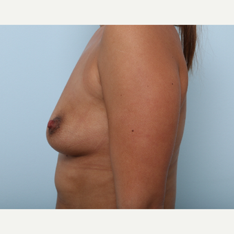Breast Augmentation before 3345927
