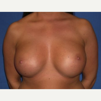 35-44 year old woman treated with Breast Augmentation after 3219970
