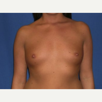 35-44 year old woman treated with Breast Augmentation before 3219970