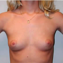 Breast Augmentation before 3680699