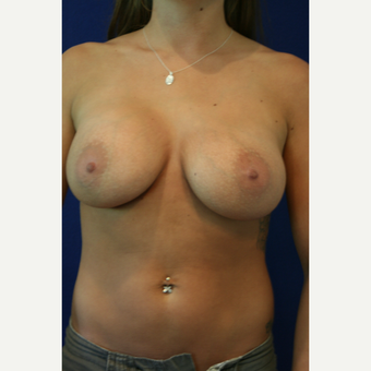 25-34 year old woman treated with Breast Implants after 3301219