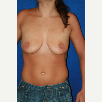 25-34 year old woman treated with Breast Implants before 3301219