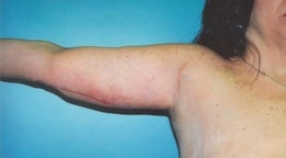 44 year old woman who underwent an arm lift  after 672548