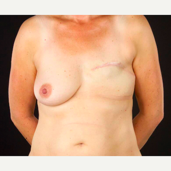 45-54 year old woman treated with Breast Reconstruction before 3697456