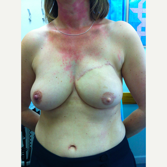 45-54 year old woman treated with Breast Reconstruction after 3697456