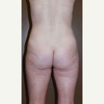35-44 year old woman treated with Liposculpture after 3017741