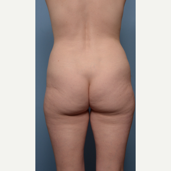 35-44 year old woman treated with Liposculpture before 3017741
