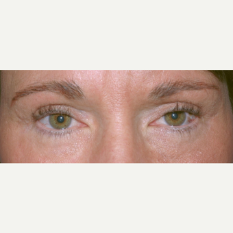 Eyelid Surgery after 3346318