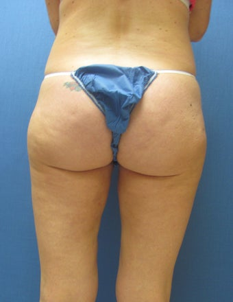 Liposuction of Buttock and Thighs after 762376