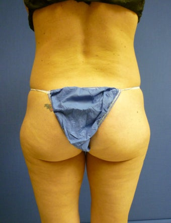 Liposuction of Buttock and Thighs before 762376