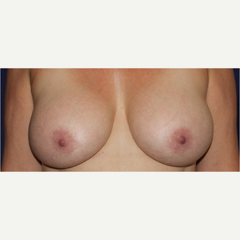60 Year Old Breast Aug With Lift before 3583393