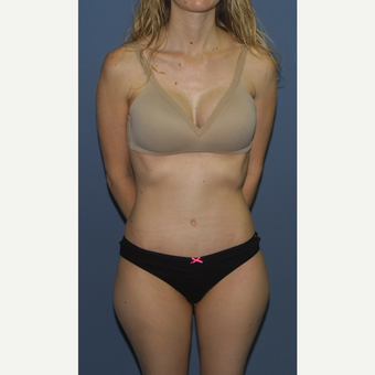 35-44 year old woman treated with Tummy Tuck Revision after 3559213