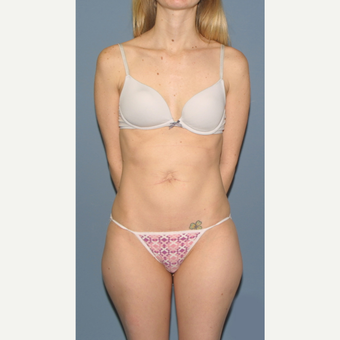 35-44 year old woman treated with Tummy Tuck Revision before 3559213