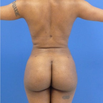 38 y.o. female – Liposuction of abdomen, flanks, and back with fat transfer to buttocks  – 1200cc pe after 1969251