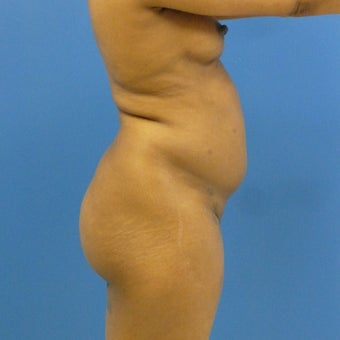 38 y.o. female – Liposuction of abdomen, flanks, and back with fat transfer to buttocks  – 1200cc pe 1969251