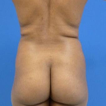 38 y.o. female – Liposuction of abdomen, flanks, and back with fat transfer to buttocks  – 1200cc pe before 1969251