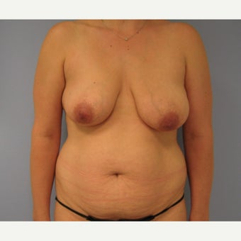 35-44 year old woman treated with Mommy Makeover before 1572414