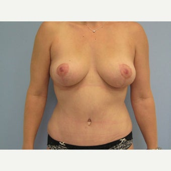 35-44 year old woman treated with Mommy Makeover after 1572414