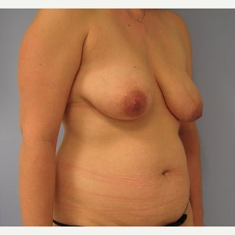 35-44 year old woman treated with Mommy Makeover 1572414