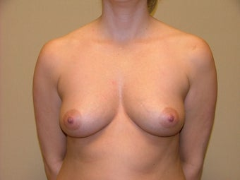 Breast Implants before 683126