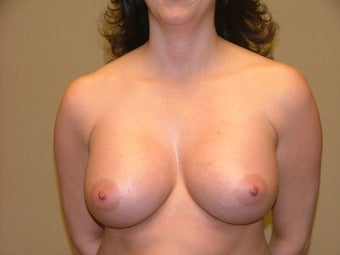 Breast Implants after 683126