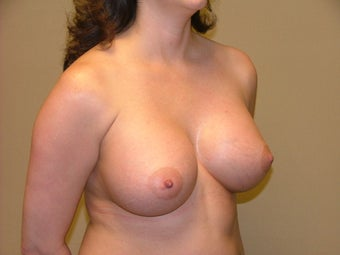 Breast Implants 683126