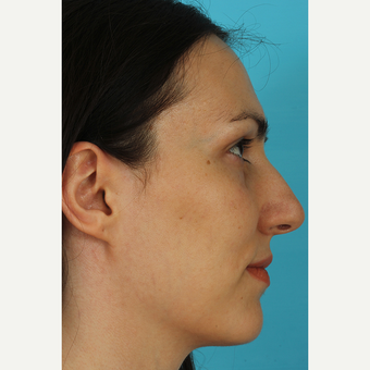 25-34 year old woman treated with Revision Rhinoplasty before 3630133