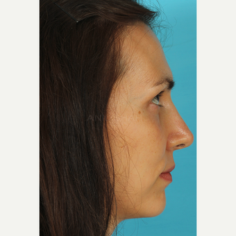 25-34 year old woman treated with Revision Rhinoplasty after 3630133