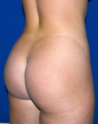 24 Year Old Female Treated To Improve Buttock Shape after 1311756