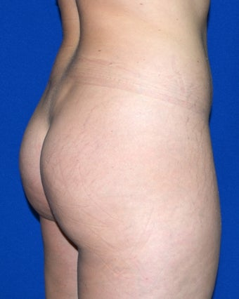 24 Year Old Female Treated To Improve Buttock Shape before 1311756