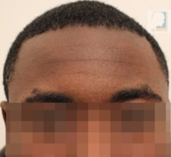 25-30 year-old patient treated with FUE Hair Transplant : Black hair / curly hair results after 3120353