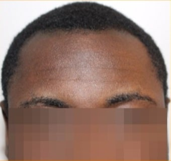 25-30 year-old patient treated with FUE Hair Transplant : Black hair / curly hair results before 3120353
