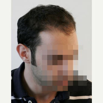 25-34 year old man treated with FUE Hair Transplant before 3068872