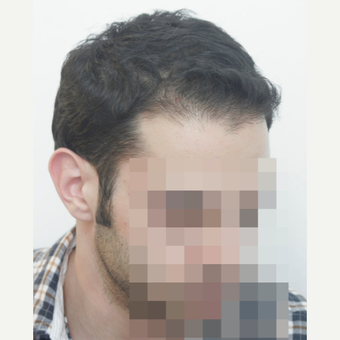 25-34 year old man treated with FUE Hair Transplant after 3068872