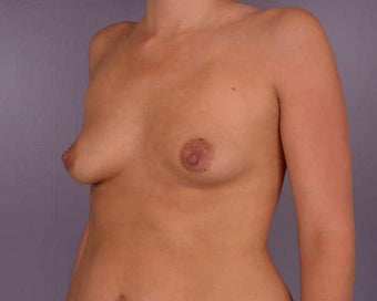 Breast Asymmetry Correction before 281340