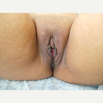 25-34 year old woman treated with Labiaplasty before 3123861