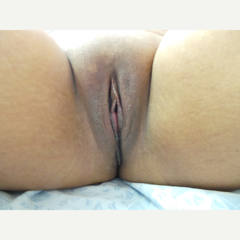 25-34 year old woman treated with Labiaplasty after 3123861