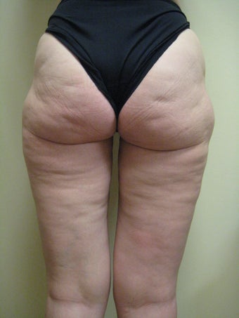 50 year old female before and after SmartLipo of her thighs before 626264