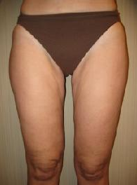 50 year old female before and after SmartLipo of her thighs 626264