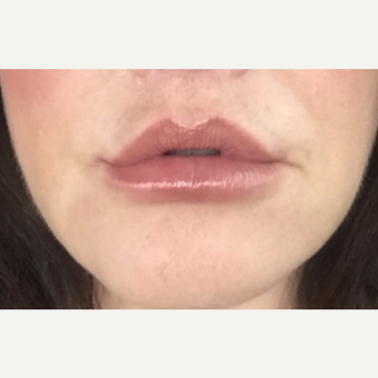 45-54 year old woman treated with Lip Lift after 3384345