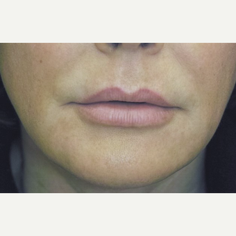 45-54 year old woman treated with Lip Lift before 3384345