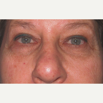 Eyelid Surgery (Blepharoplasty) after 3831509
