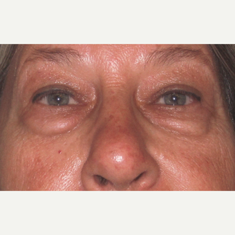 Eyelid Surgery (Blepharoplasty) before 3831509