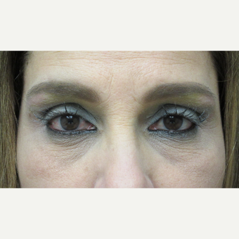 45-54 year old woman treated with Brow Lift after 3276740