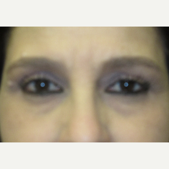 45-54 year old woman treated with Brow Lift before 3276740