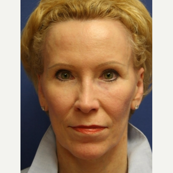 67 year old woman with a facelift, removal of fat from left-lower eyelid before 3055386